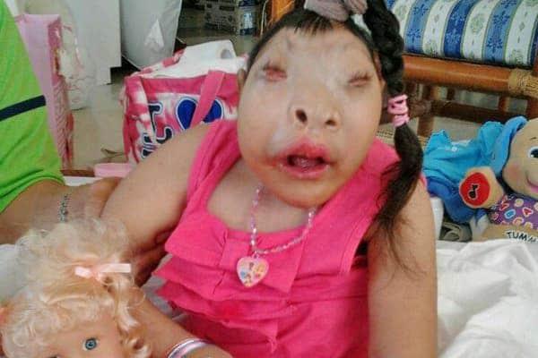 Maliu Baby Miracle